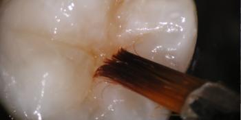 Láthatatlan fogtömés mikroszkóp alatt