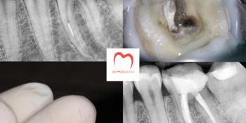 Betört tű eltávolítása és mikroszkópos gyökérkezelés mikroszkópos fogászaton