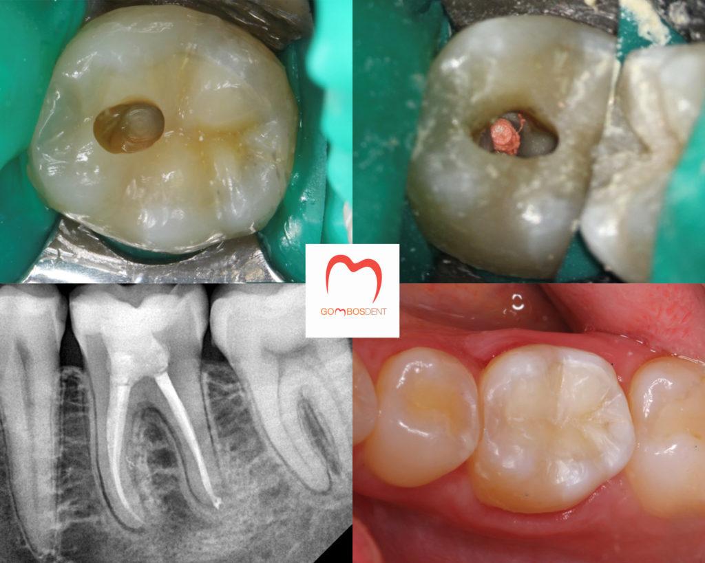ízületi fájdalom a fogkezelés után)